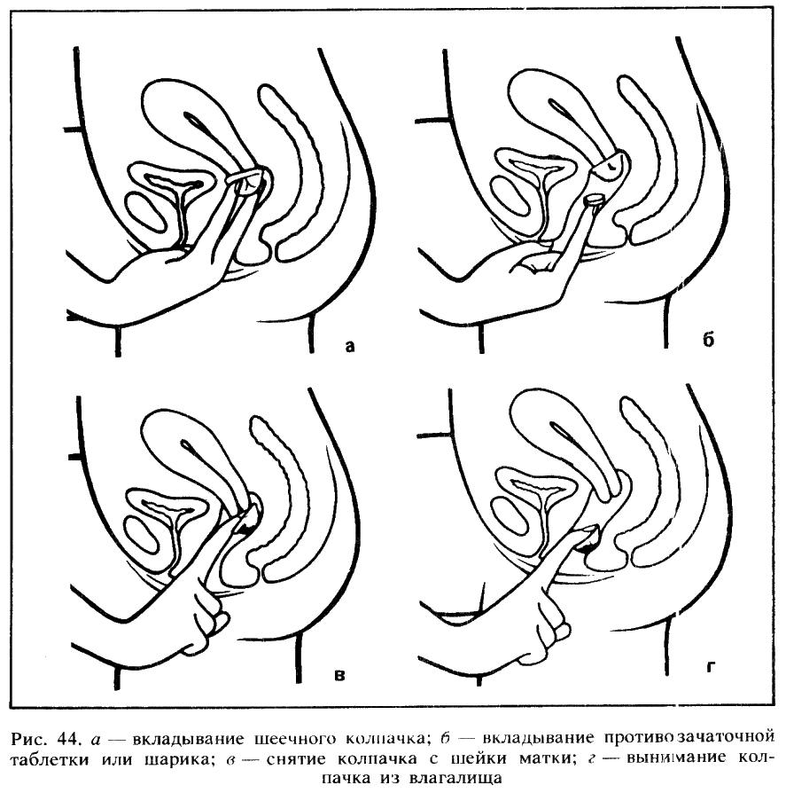 Чем можно заменить вагину 16 фотография
