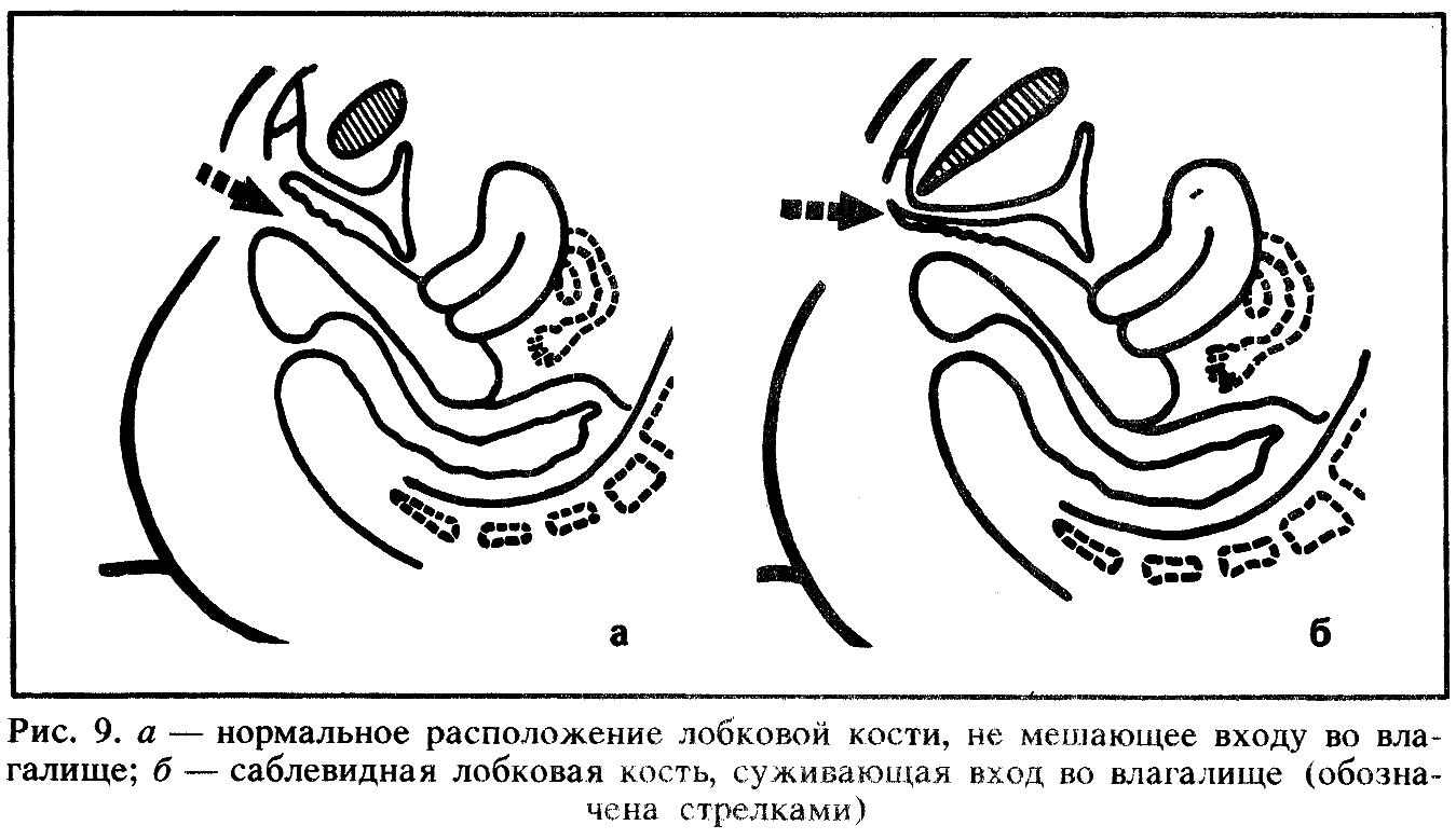 Техника первого полового акта 25 фотография
