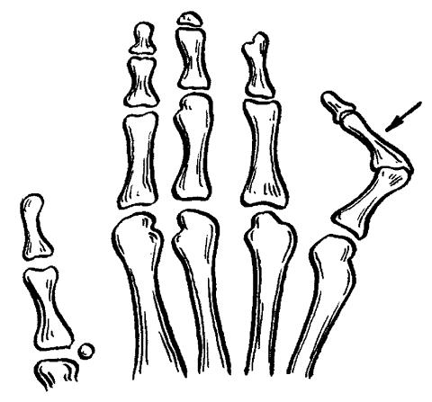 Вязание узор ландыш