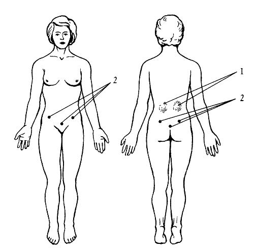 Лечение артроза суставов препаратами