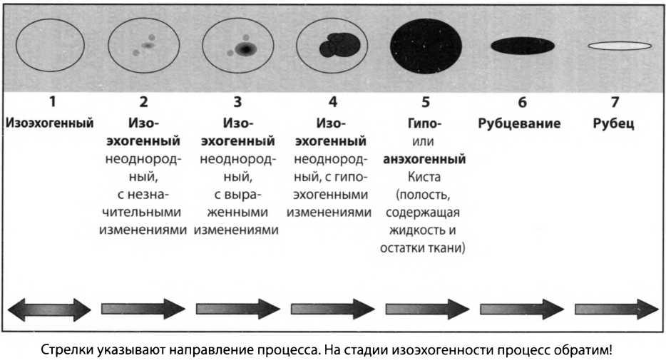 Схема стадийного изменения